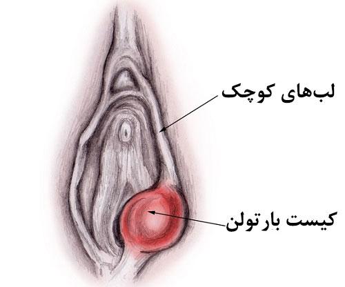 علت، علائم و درمان کیست (آبسه) غدد بارتولن واژن