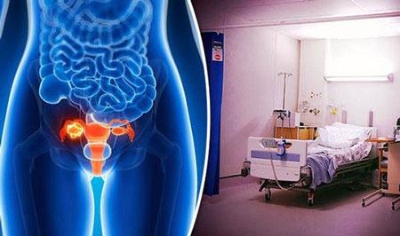 درمان سرطان تخمدان