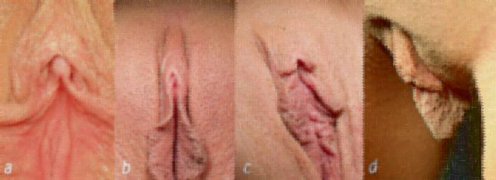 انواع کلاهک کلیتوریس یا پوست روی چچول زنان