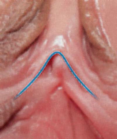 زیباسازی کس با عمل جراحی لابیاپلاستی و کوچک کردن چچول زن