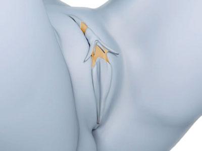 سه بخش لوب کوچک واژن در لابیاپلاستی