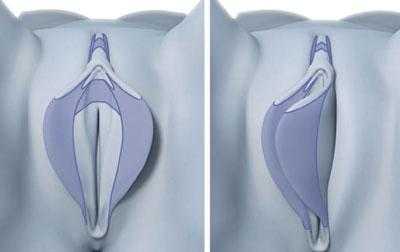 قسمت های واژن که در عمل لابیاپلاستی بریده و خارج می شوند