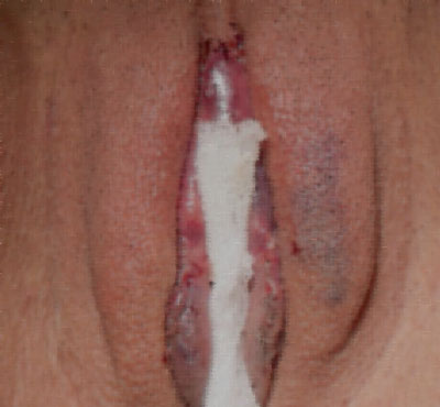 طریقه قراردادن گاز استریل بین دو لب واژن بعد از جراحی زیبایی کس