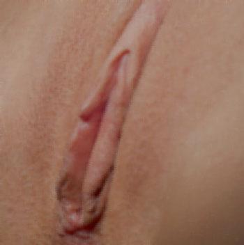 جوش نخوردن زخم جراحی زیبایی واژن - بد جوش خوردن زخم لابیاپلاستی