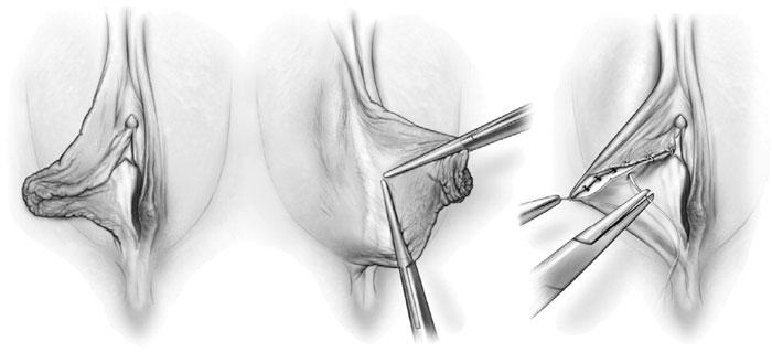 بازسازی گند جراحی لابیاپلاستی و تصحیح مجدد کس زن