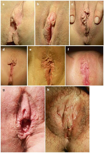 درست کردن واژن معیوب بعد از لابیاپلاستی اشتباه و نتیجه عمل لابیاپلاستی بد - دفورمیتی لابیاپلاستی