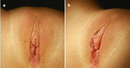 عکس قبل و بعد از ترمیم و بازسازی کس پس از لابیاپلاستی