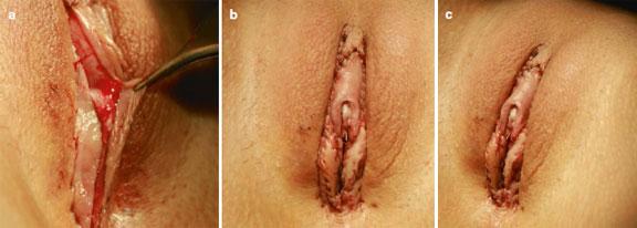 عکس کس خراب بعد از عمل جراحی لابیاپلاستی شکست خورده معیوب