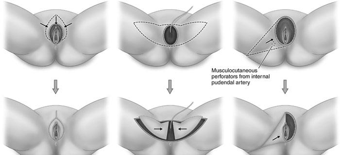 برطرف کردن نقص حال از جراحی لابیاپلاستی لب کوچک کس