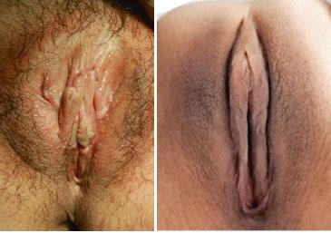 عکس قبل و بعد از عمل لابیاپلاستی لوب کوچک وازن