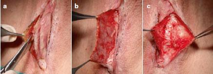 جراحی بازسازی بدشکلی واژن بعد از عمل زیباسازی