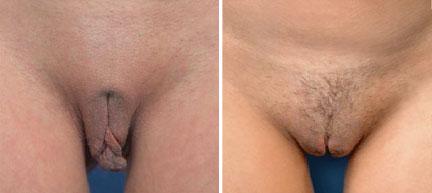 عکس قبل و بعد از عمل لابیاپلاستی لوب کوچک و لوب بزرگ کس زن