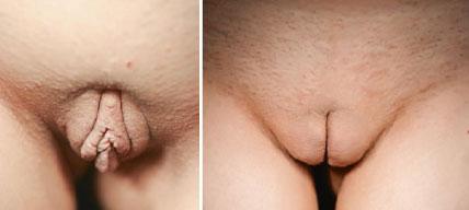 عکس قبل و بعد از عمل لیپواستراکچر قشنگ کردن کس زن و پیره زن