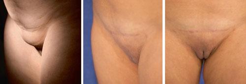عکس قبل و بعد جراحی لیفت مونس پوبیس و لیپوساکشن مونس پوبیس