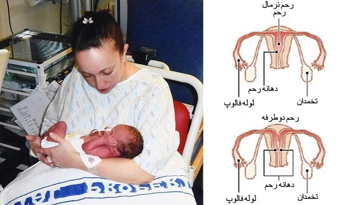 بارداری با بیماری دو رحمی
