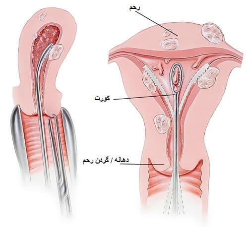روش درمانی دیلاسیون و کورتاژ برای بیماری زنان