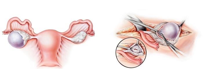 جراحی کیست تخمدان برداشتن کیست تخمدان با روش باز و لاپاروسکوپی