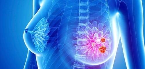 چه عواملی باعث ایجاد کیست در سینه میشوند؟