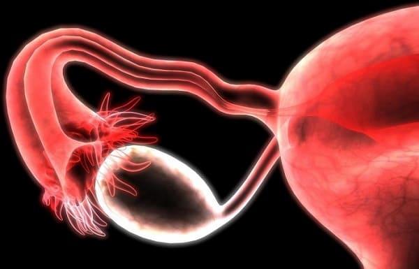 بزرگ شدن تخمدان ها نشانه چیست؟ درمان با دارو و جراحی
