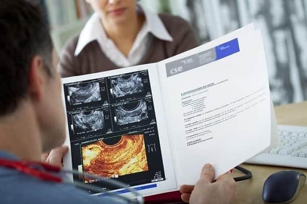چگونه کیستهای درموئید تشخیص داده میشوند؟